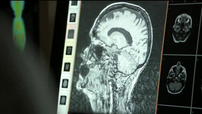Dokážeme zastaviť Alzheimerovu chorobu ?