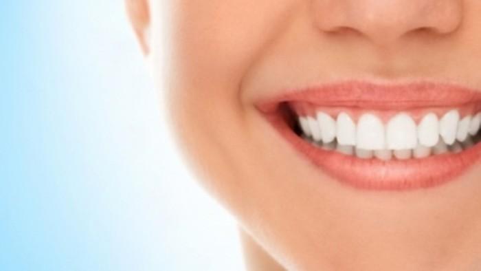 Minden, amit a fogfehérítésről tudni kell