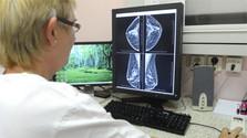 Год профилактики: следующий шаг – скрининговая маммография