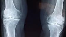Osteoporóza sa týka i detí