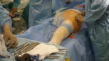 Prípad nesprávneho kolena